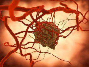 An Blutbahnen angeschlossener Tumor